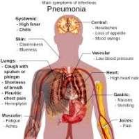 ภาวะติดเชื้อที่ปอดในผู้สูงอายุ-pneumonia