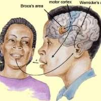 ความผิดปกติทางการพูดและทางภาษาในผู้ป่วยโรคหลอดเลือดสมอง-aphasia